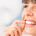 Orthodontic aligners