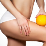 Cellulite, an enemy of women: the advice to prevent and cure it
