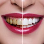 Dental aesthetics, how to take care of your smile