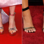 Star with ugly feet: here are the worst