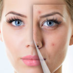 Acne, the vaccine that eliminates it comes