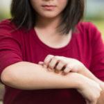 Lawn dermatitis: causes, symptoms and remedies
