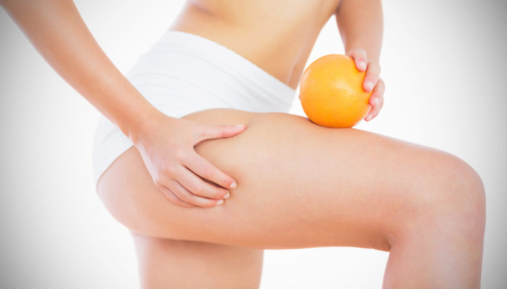 Combat cellulite with natural coffee-based remedies