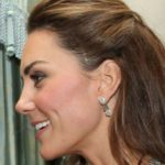 Kate Middleton, the mystery of the scar on her temple