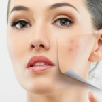 Free the skin from pimples: here's how to delete them