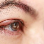 Health: what is blepharitis and what are the most effective remedies