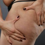 Nir treatment to combat cellulite