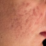 Pimples: the enemy foods of the skin