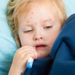 Scarlet fever: symptoms, diagnosis and treatment