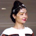 Scarred with acid: the Reshma model shows in NY against violence