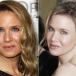 Zellweger disfigured by the botox. She denies everything and replies annoyed