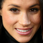 Meghan Markle, everyone wants her nose: boom in rhinoplasty requests
