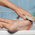 Feet: every callus denotes a problem. Here is the map