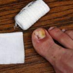 Pain in the toes: ingrown toenail symptoms