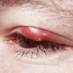 What are the differences between the orzaiolo and the chalazion
