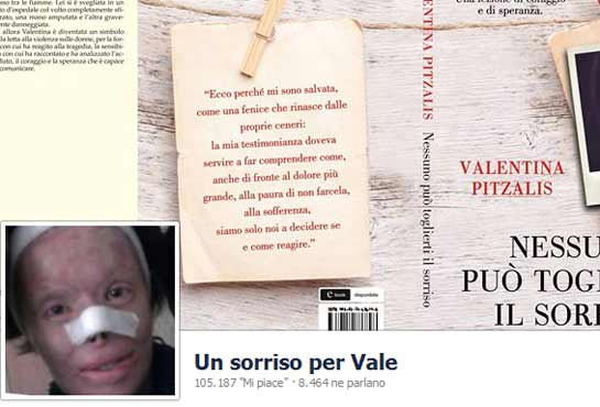 "Valentina Pitzalis, disfigured by her husband: ""She can't take away my smile"""