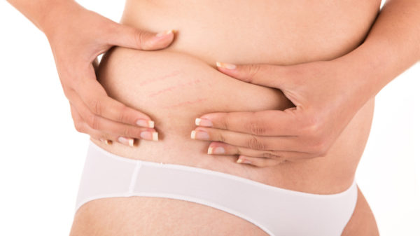 How to prevent red stretch marks