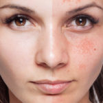 Melasma, why skin spots appear and how to protect yourself
