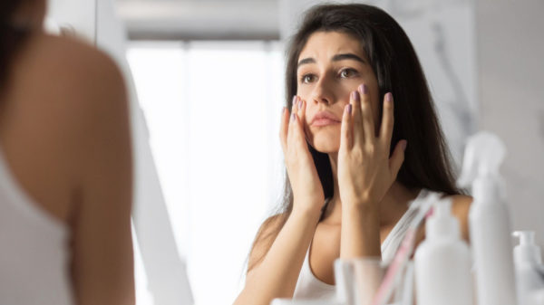 Skin Purging: what it is and how to deal with it