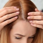 Peeling of the scalp: causes and what to do