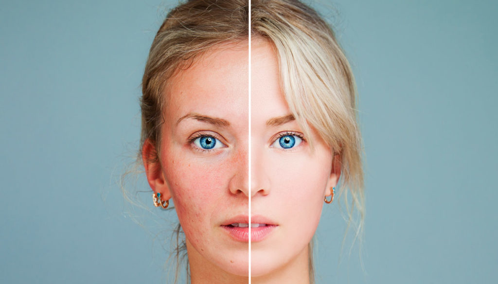 Rosacea, how it manifests itself and how it is addressed