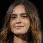 "Kasia Smutniak reveals: ""Vitiligo? I accept it, it's no longer a problem """