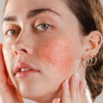 Rosacea, hypertension among the risk factors
