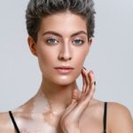 Vitiligo: what it is, its triggers and how to treat it