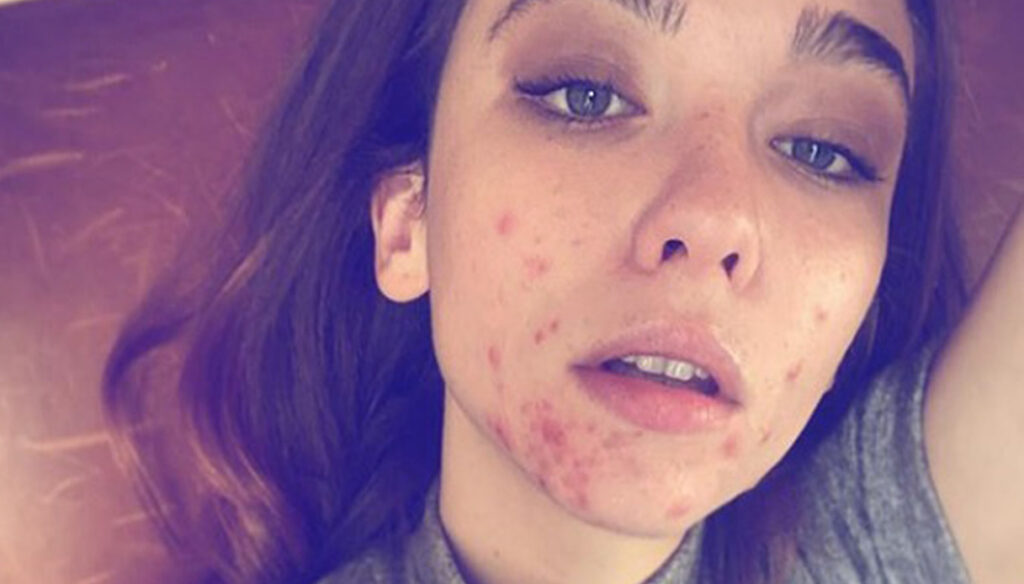 """Matilda De Angelis: """"Proud of my scars. I don't mind being beautiful """""""