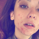 "Matilda De Angelis: ""Proud of my scars. I don't mind being beautiful """