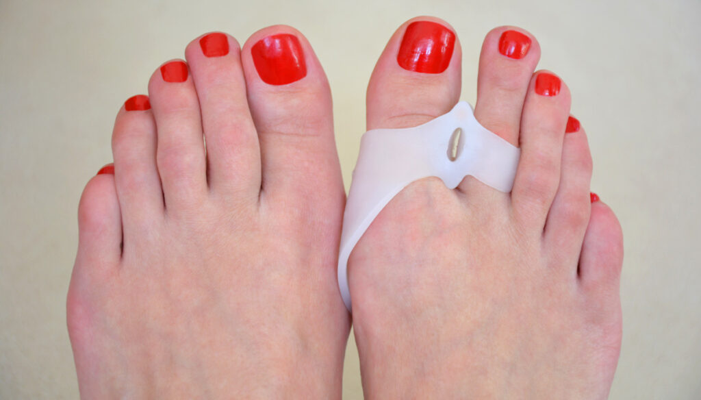 Hallux valgus: how to prevent it and reduce pain