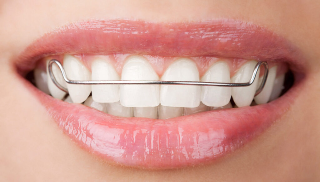 """Gingivitis, the device can """"change"""" the microbiota"""