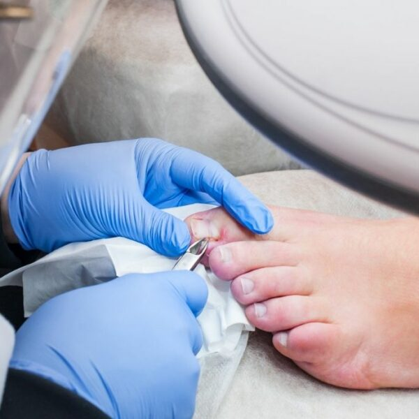 Ingrown toenail: how to recognize it and what to do