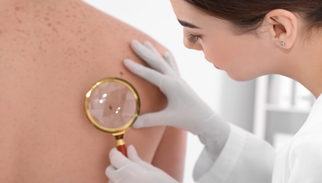 Not only melanoma, how to recognize and deal with actinic keratosis