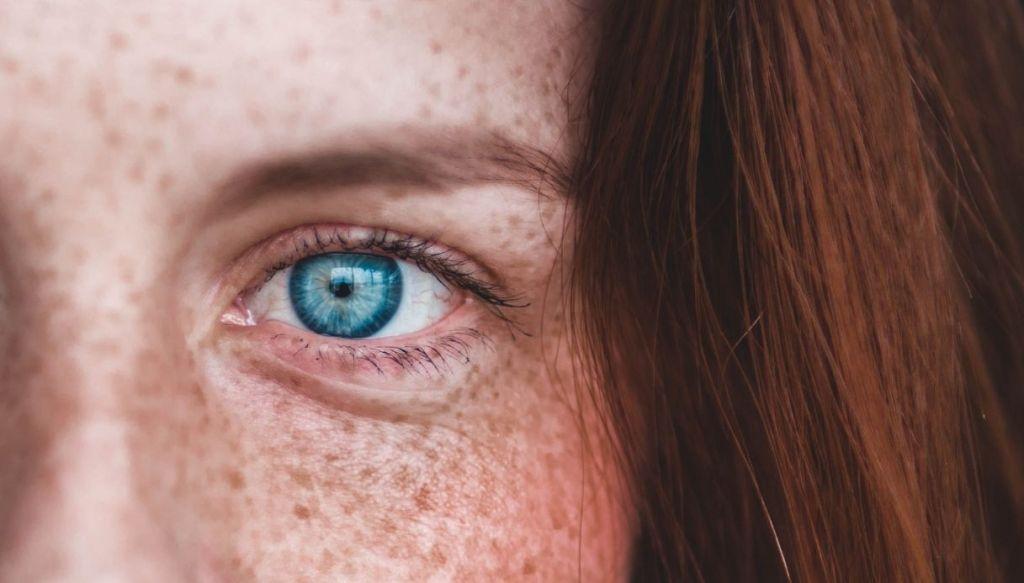 blue eye red hair freckles