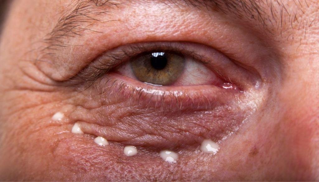 anti-wrinkle eye contour cream