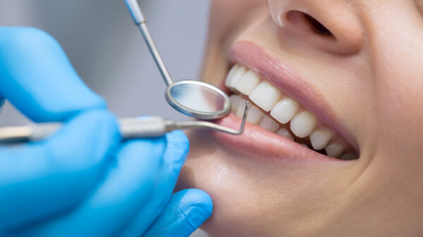 Periodontitis, how to save the smile in the most serious forms